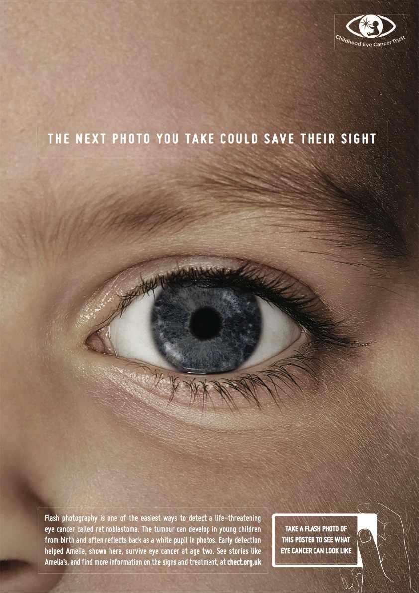 cancer olho crianca (1)