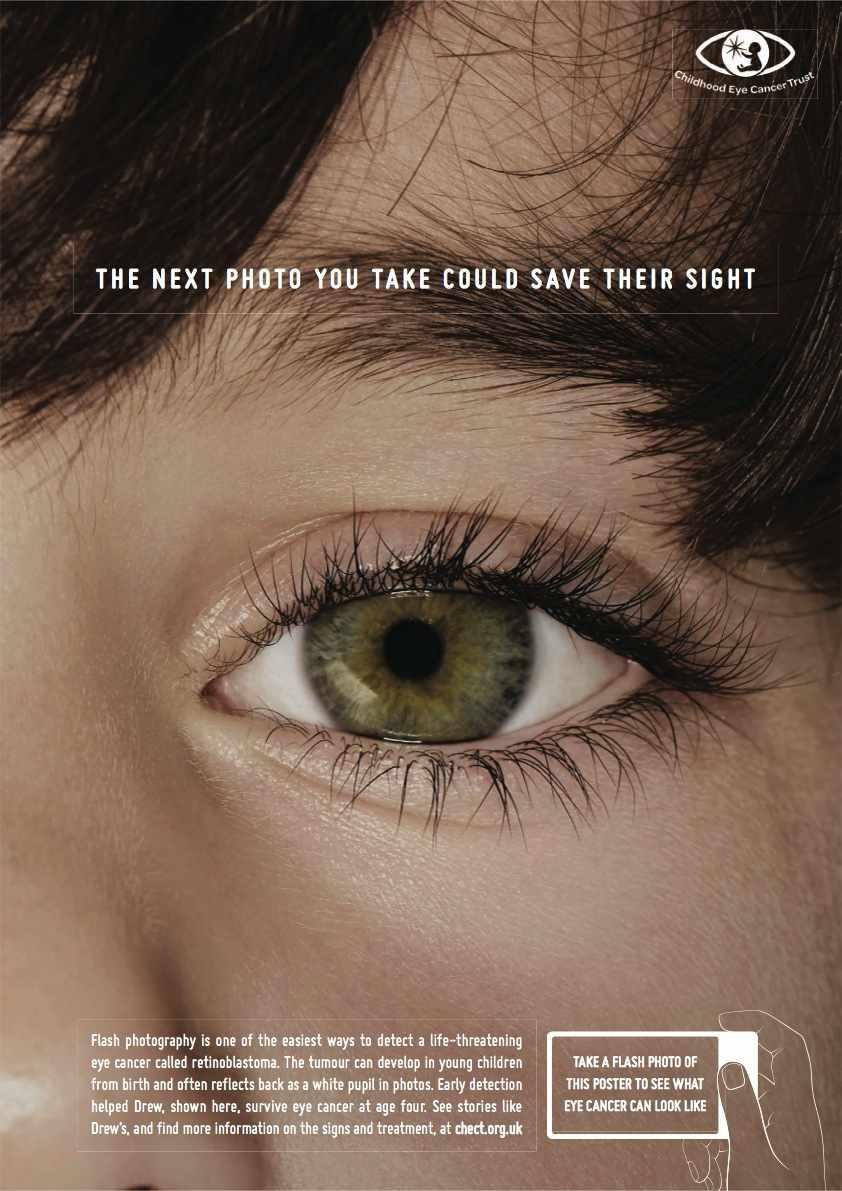 cancer olho crianca (2)