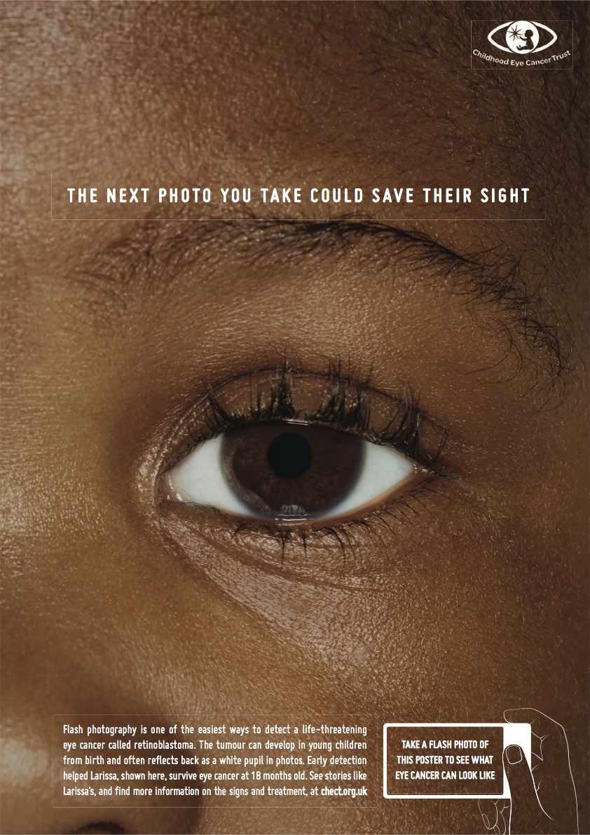 cancer olho crianca (3)